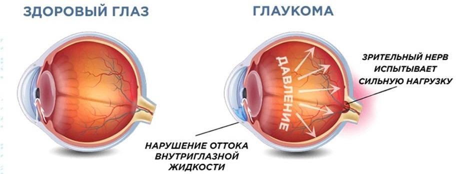 Тонометрия