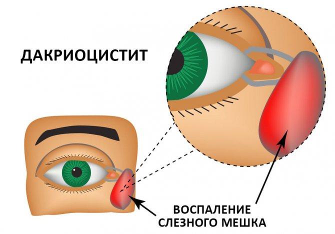 Операции на слезных протоках